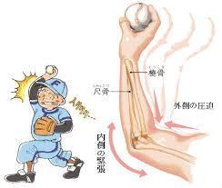 野球ひじイラスト