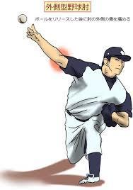 野球ひじ 外側イラスト